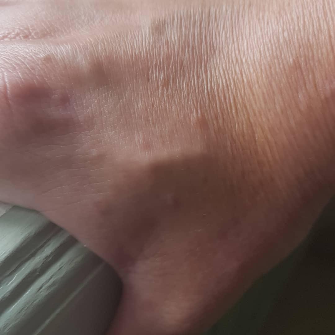 鐘點戰成真!瑞典「手指尖植入晶片」 4000人踏入高科技附身生活...紗布掀開細膩縫合震驚世人