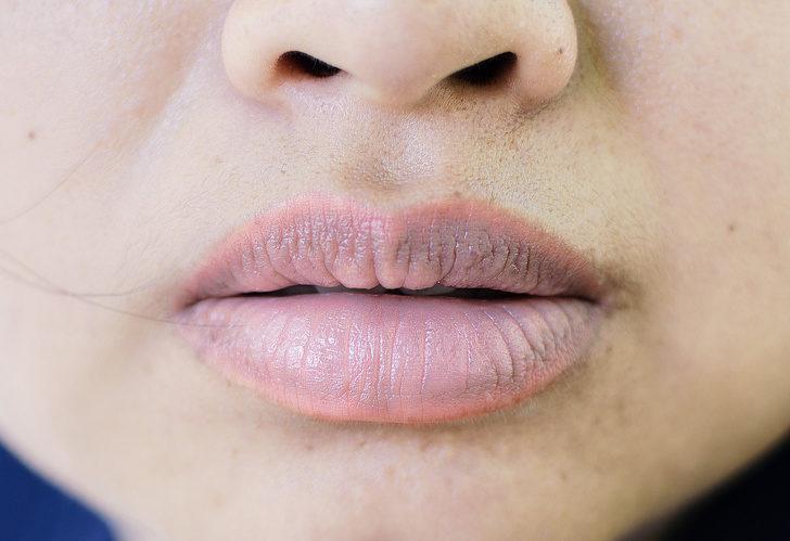 10種症狀告訴你「身體警鈴正在響」 「牙齒上的白點」不可忽視!