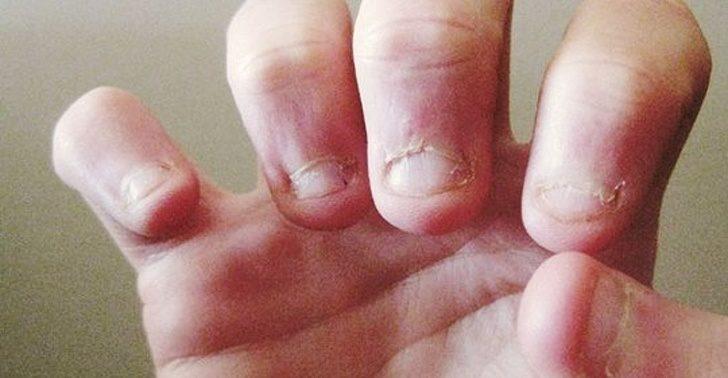 12種你從來沒有意識到「揭露你就是強迫症患者」的線索 咬指甲就是一種想擺脫焦慮的表現!
