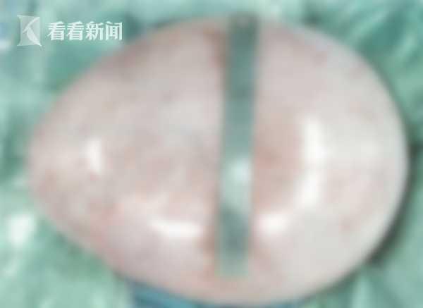 她突然狂暴肥家人以為懷孕 到醫院檢查後竟取出「整塊粉紅色肉瘤飛盤」