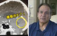 男子大腦拍到「恐怖鵪鶉蛋」 手術前「再檢查」發現被老天爺拿走了?