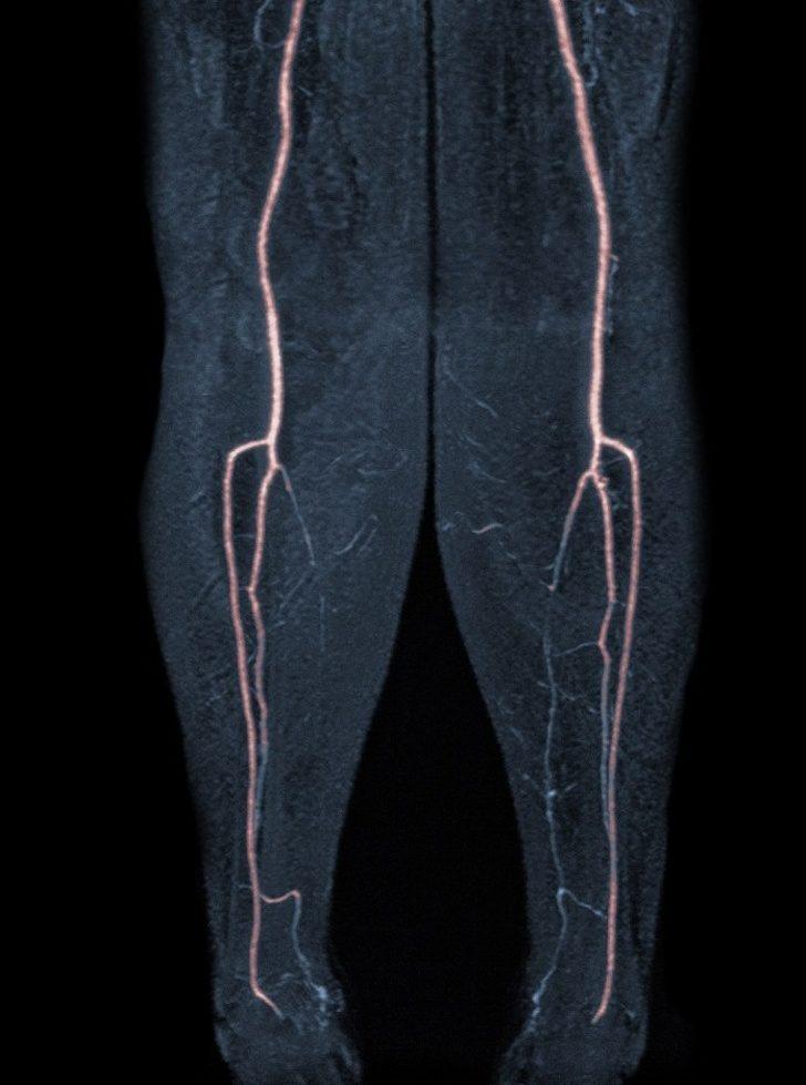 15個「只在你腦袋浮現卻從沒看過」的驚奇人體X光照 小孩乳牙+恆齒竟然有4排!