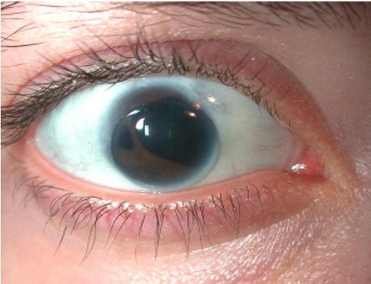16個你絕對沒有見過「與眾不同的身體特徵」 閃電圖案的眼睛太酷了!