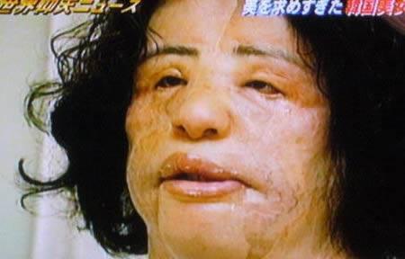 電風扇阿姨「整形前美女模樣」曝光 想變美「全臉灌沙拉油」9年來眼睛沒閉過