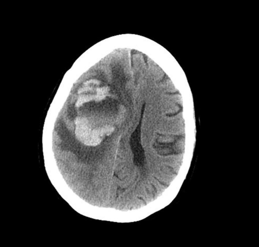她習慣洗澡用自來水「洗鼻子」 醫生拍X光發現「大腦一片糊糊」還蠕動:完蛋了!整片都被啃蝕