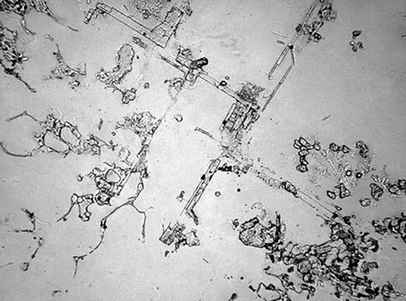 開心和傷心的淚水長得不一樣!9種顯微鏡下「因不同情緒而流淚」的淚水結晶 切洋蔥的淚水太唯美