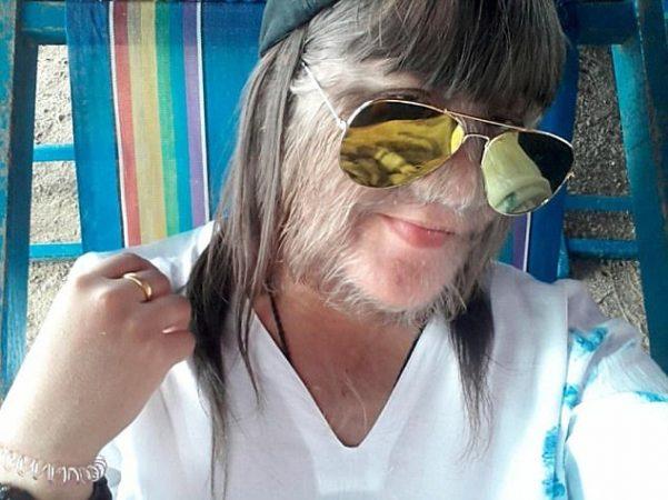19歲狼人女孩「終於得到公主結局」 臉書PO文:生活變成2個人了...曬出無毛超美臉蛋!