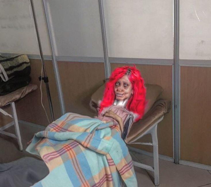被爆整形50次!天使正妹慘變「喪屍版安潔莉納」 躺醫院近照訴苦:斷了