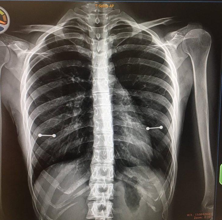 22個「連守護天使都被嚇走了」的超級倒楣人 照了X射線...秘密慘被媽媽發現!