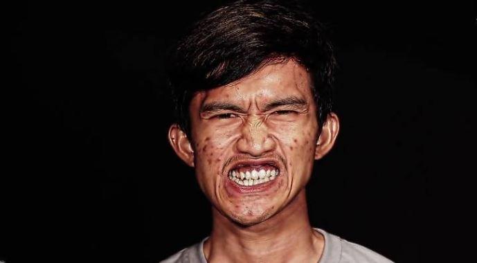 歪嘴男自認太醜...「不敢跟朋友一起吃飯」 整形後巨大轉變讓「變性女友」哭到翻!