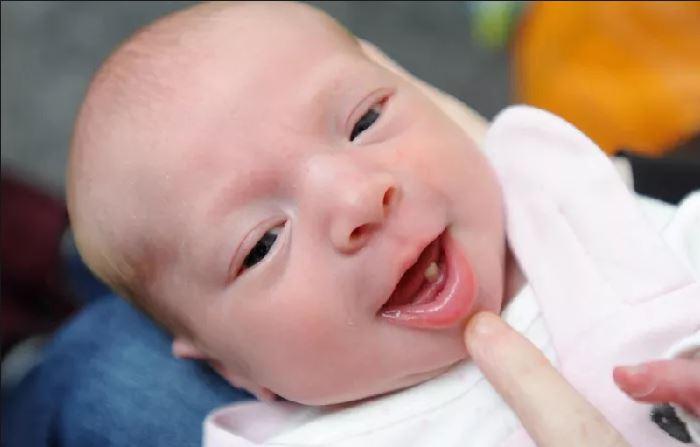 寶寶一出生「已經長好牙齒」嚇壞護士 卻因為3個「致命原因」一定要拔掉
