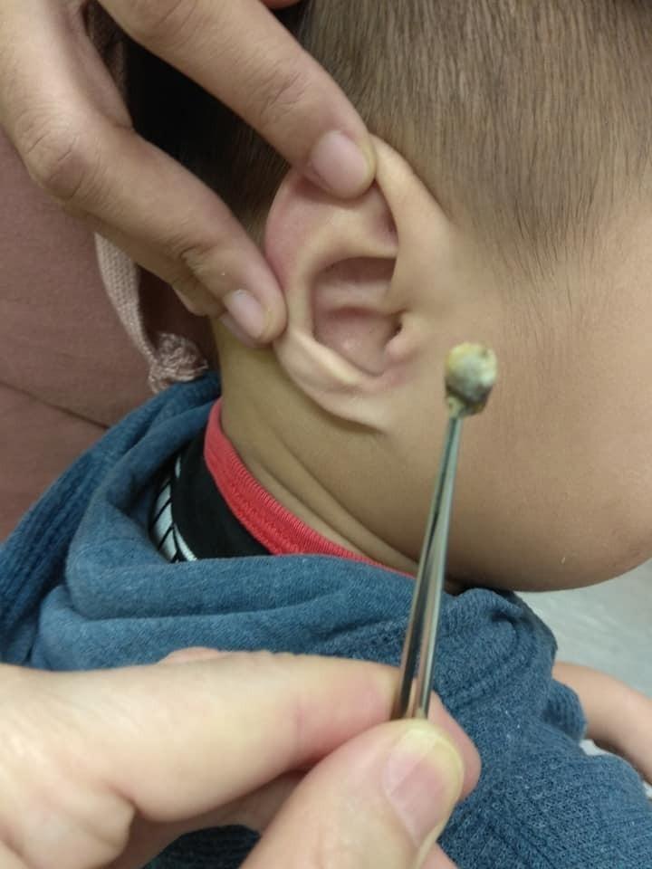 3歲男童聽不到媽媽說話 醫生從他耳朵裡抓出「2個巨獸級耳屎」直接搞定!