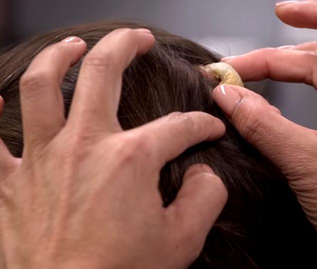 她的後腦勺長出「詭異犀牛角」 醫生撥開頭髮嚇傻:第一次看到這麽大的!