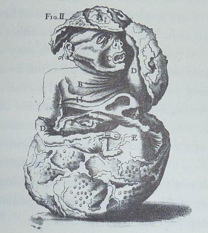 她羊水流滿地「寶寶突然縮回去」 28年後切開肚子竟看到「一塊石頭嬰兒」