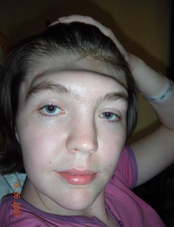 正妹因「99%的人都會做」的錯誤姿勢...整個額頭「一半消失了」 她:人生最慘的2年