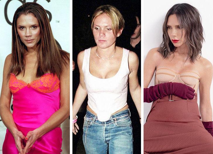 18位「勇敢承認自己整形」的好萊塢大明星 維多利亞貝克漢後悔「變太大」