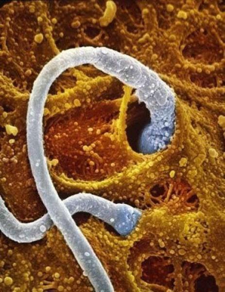 瑞典攝影師花12年時間「記錄生命的起源」 到第18週墮胎也太殘忍