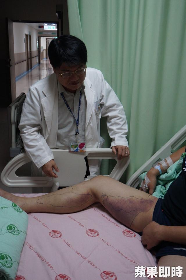 台中男被鎖鍊蛇咬「只有中部沒血清」 醫師「搭高鐵」花4小時成功救命!