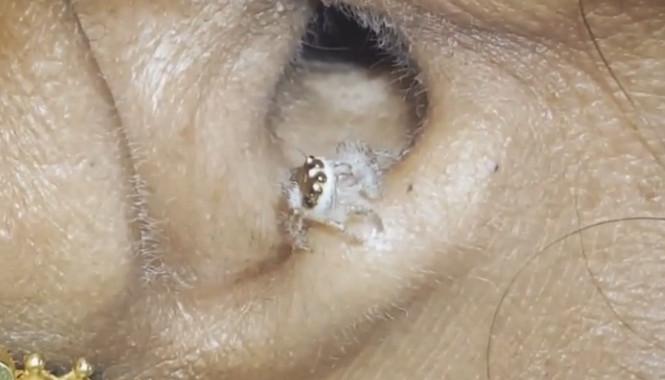她長期頭痛找不到解藥 醫生靠近看發現「蜘蛛把耳朵當家」網友開始擔心了...