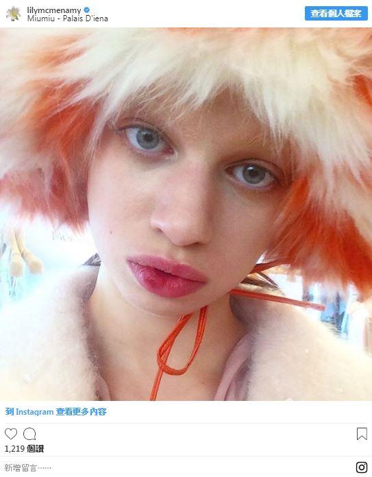 12位成功「打破世人對美的定義」的不完美模特兒 她有「500個胎記」卻讓世界驚艷!