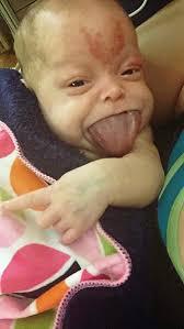 產檢超音波拍到「寶寶吐舌萌照」 醫生看完卻嚇壞:馬上剖腹!