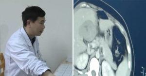 她因為「上腹腫起來」去醫院 檢查結果連醫生也嚇壞:你的肝臟懷孕了!
