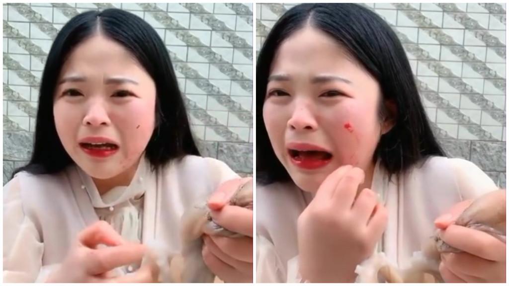 網美太想紅挑戰「生吞章魚」遭無情大反擊 整張臉被吸到「扭曲變形」拔不掉當場見紅!
