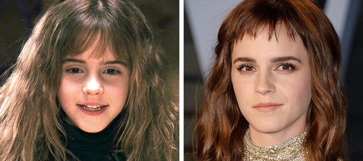 12位「長大沒崩壞反而更有名」的好萊塢童星 《哈利波特》的「奈威」變超可口!