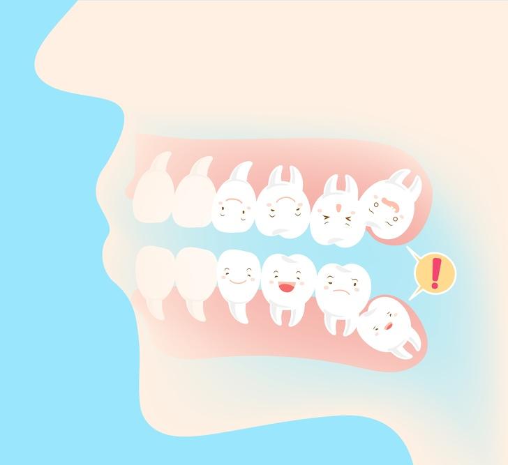 「戴牙套前」一定要知道的11件事 不是每個人都需要拔牙!