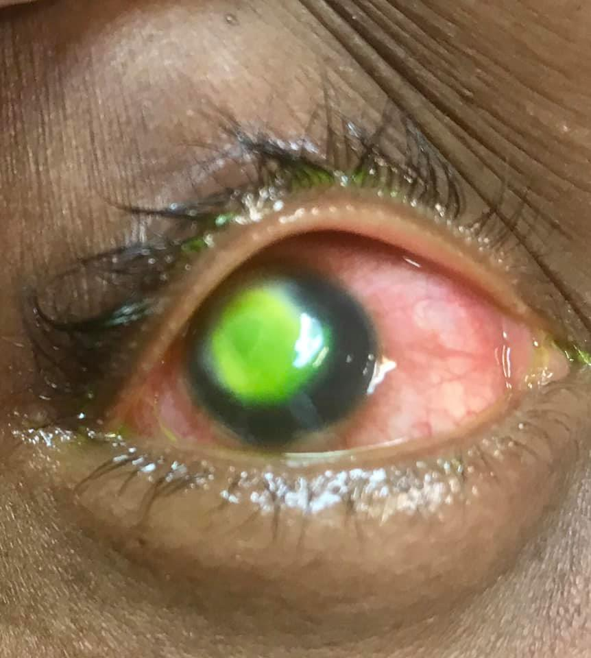 醫生公開「戴隱眼睡覺的後果」照片嚇壞30萬人!網友驚:角膜被吃掉了