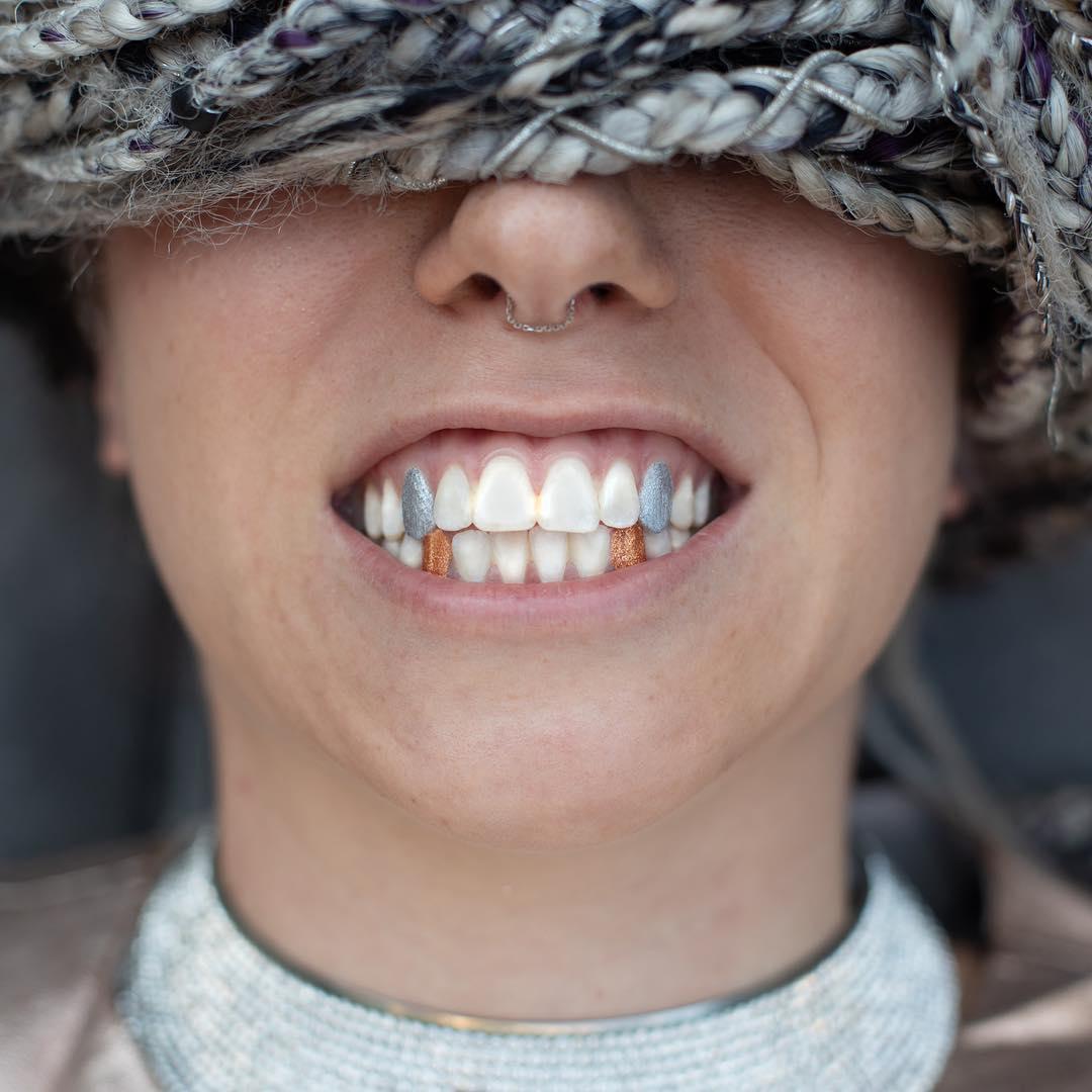 19個讓人完全「黑人問號」的怪異時尚潮流 她把「整副牙齒」種到手上