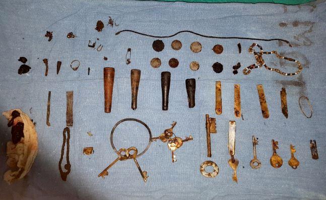 他肚子痛照X光體內竟找到「80個雜物」 醫生:鑰匙都生鏽了...
