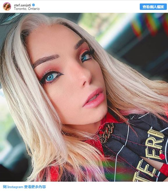 20個讓你以為「人類是精靈的後代」超美獨特人 她的眼睛竟然是金色的!