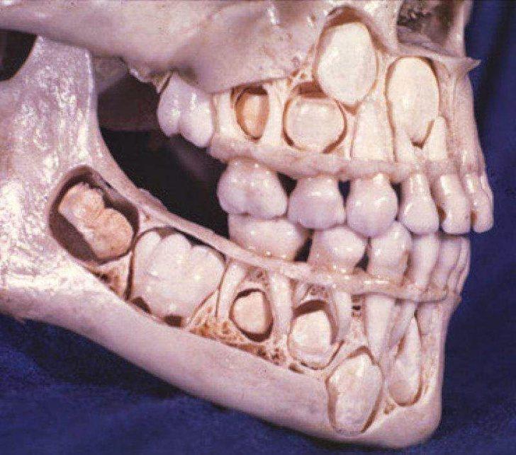 14個「藏在我們身體裡」的超驚人小知識 拔牙超痛是因為它們「像冰山一樣」!