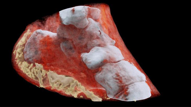 18張「揭露人體奧秘」的珍貴X光照 寶寶在子宮裡的「超清楚動態影片」曝光!