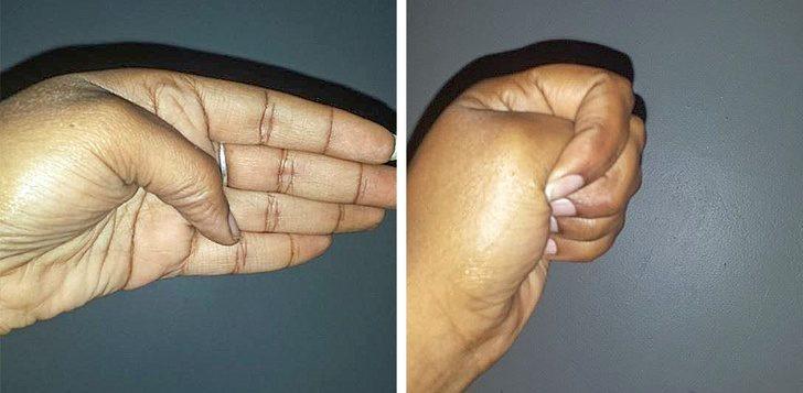 12個讓你「不去看醫生也能治好身體」的簡單動作 對拇指「吹氣」可以降低血壓!