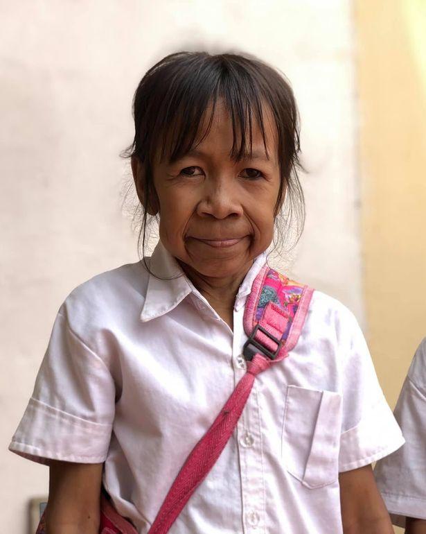 10歲女童因「天生皮膚皺巴巴」被嘲笑是老奶奶 她揭開「心碎真相」後卻讓所有人爆淚!