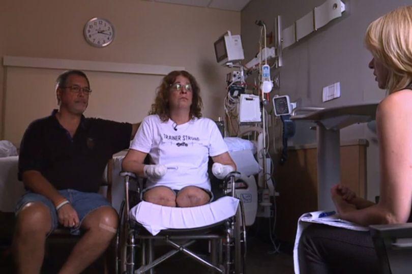 她被愛犬「熱情狂舔」後緊急送院 醒來驚見「手腳不見」超崩潰:主人都該警惕!