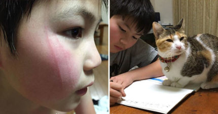 別阻止我對貓皇的愛!日本小貓奴「被抓傷」不怕痛 拿「秘密武器防禦」網笑翻:超M!