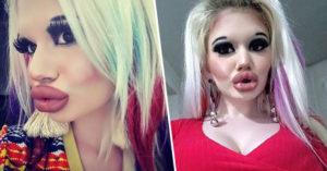 正妹為了變性感「狂用15種填充劑」豐唇 她曝光「崩壞前模樣」網驚呆:可惜了…