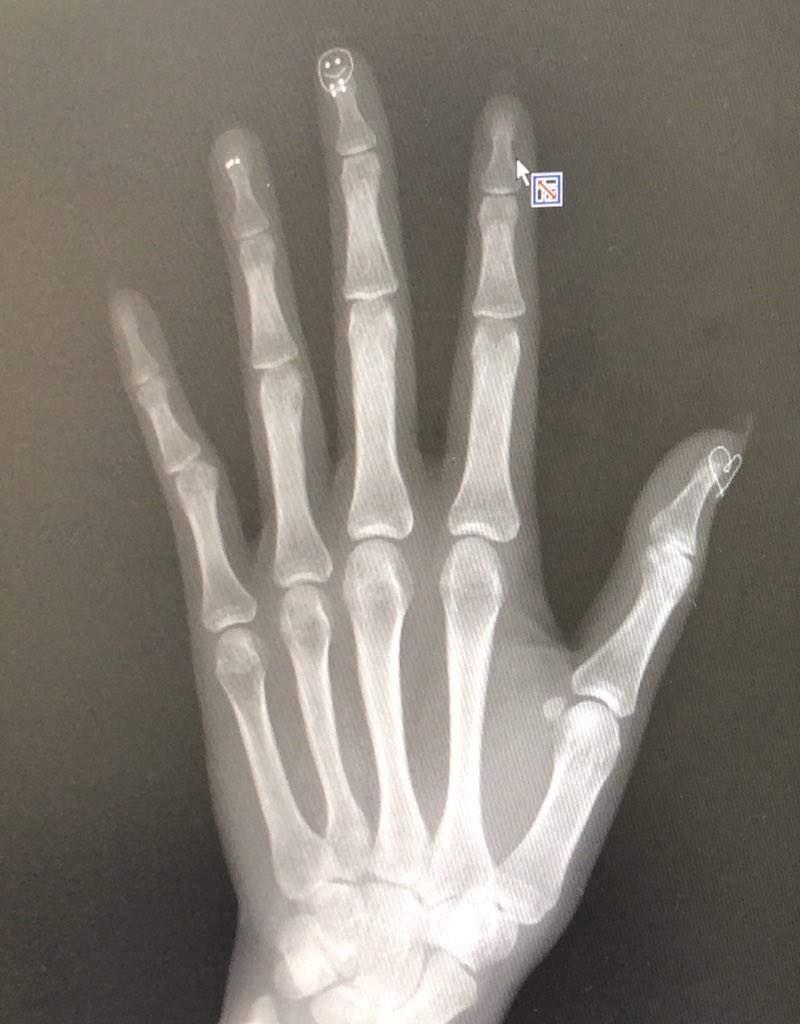 她照X光「忘記卸美甲」 拍出「超夢幻指尖」醫生也被萌到!