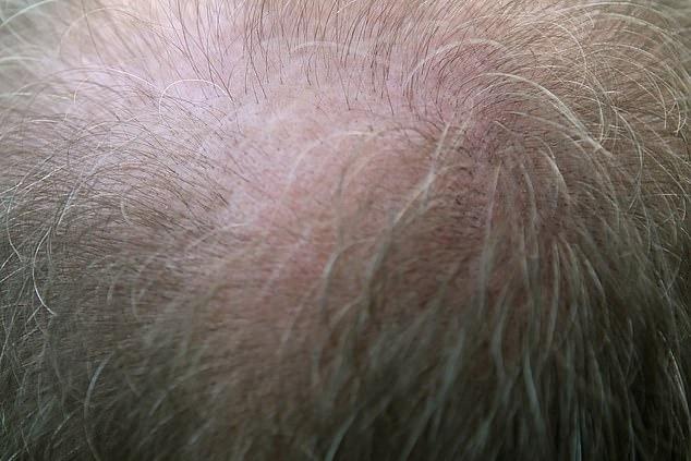 全球首間「頭髮銀行」發誓拯救所有禿頭 得趁「還有毛」先來存