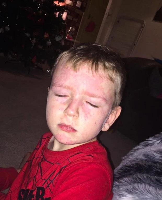 小男孩「對天氣過敏」一變天就住院 媽心疼:太冷太熱都不行...