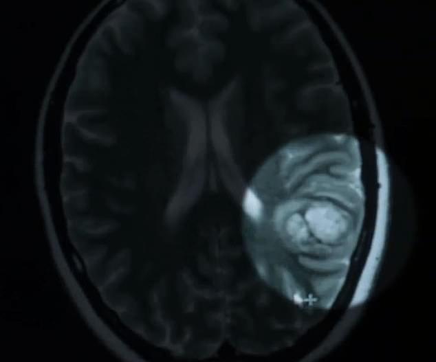 正妹中風想讓大家更了解病情 大膽直播「開腦手術」她全程微笑邊聊天!