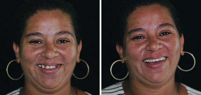 牙醫環遊世界幫「最窮人民」找回笑容 她看見「治療後的牙齒」忍不住直接噴淚!