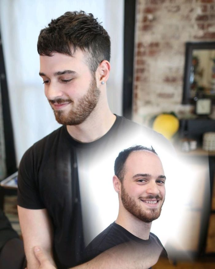 25個神人「拯救禿頭男」的改造案例 髮型對了「肥宅禿大叔」秒變健身型男!