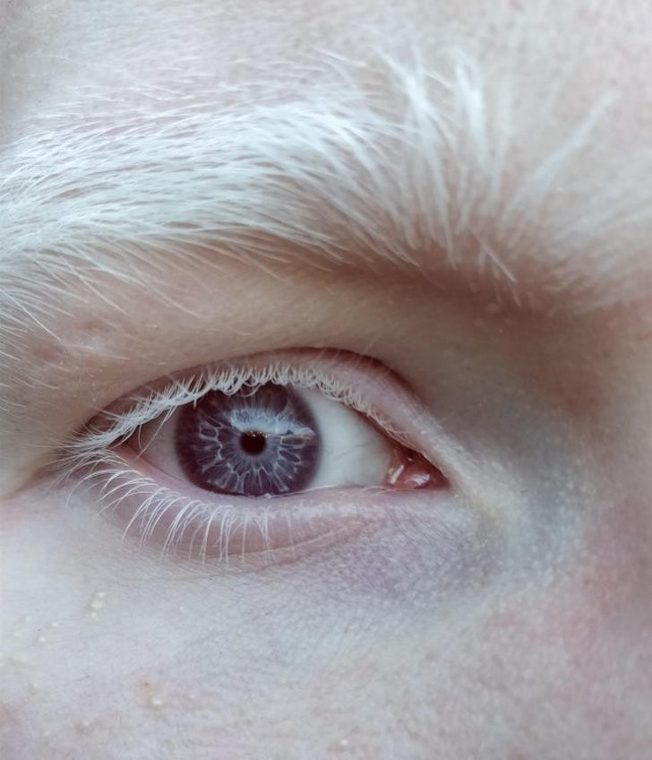 18個「中了基因頭獎」的超幸運人類 他瞳孔裡「藏著大海」美得像幅畫!