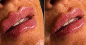國外新潮流「惡魔嘴唇」嚇壞一票人 醫師呼籲「可能致命」連網美都不敢試!