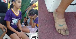 11歲女孩自製「繃帶Nike鞋」賽跑奪金 「超勵志故事」感動廠商…決定提供贊助!