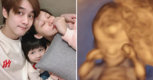 那對夫妻沉重宣布第2胎「小林萌離開了」!女兒懂事回:我們都會等他